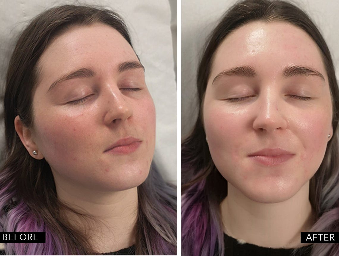 Mesotherapy-med-jet-before-after
